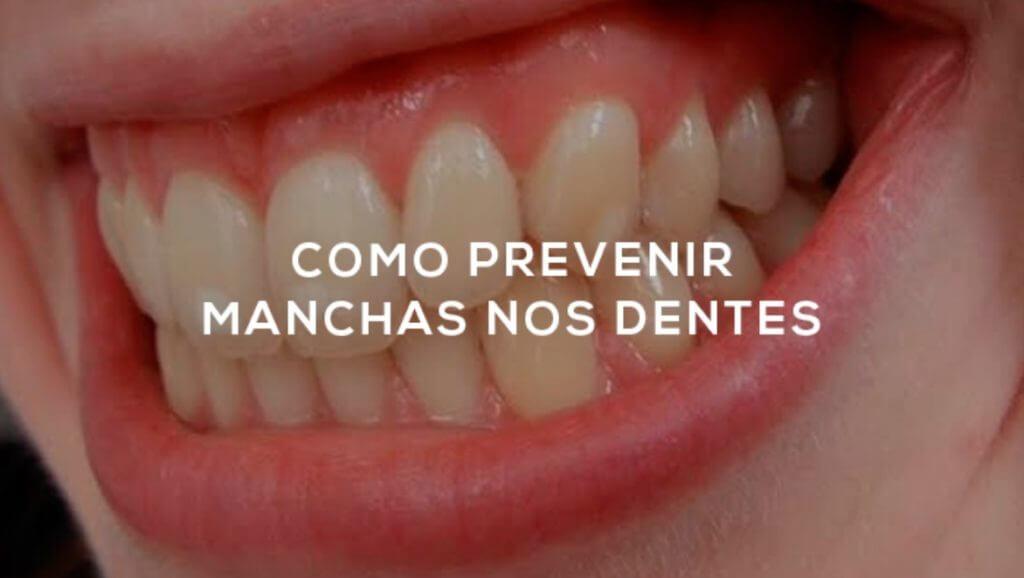 Como Prevenir Manchas nos Dentes